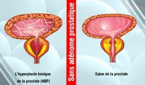 Efficace pour le Traitement l'HBP chez les Hommes sans Chirurgie