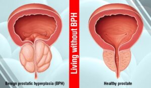 Effective Treatment for BPH in Men Without Surgery