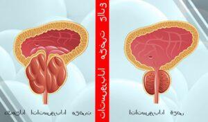 العلاج الفعال للتضخم البروستاتا الحميد لدى الرجال دون جراحة