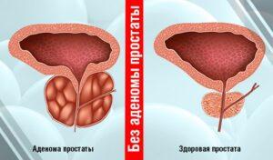 Лечение Аденомы Простаты у Мужчин без Операции (без Пилюль)