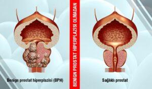 Etkili bir Tedavi Benign Prostat Hiperplazisi Erkeklerde Ameliyat olmadan