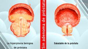 Hiperplasia Prostática: Tratamiento sin Cirugía