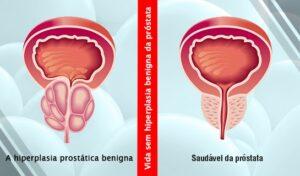 Um Eficaz Tratamento da Hiperplasia Próstatica em Homens sem Operação