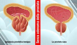 Efficace Trattamento di Iperplasia Prostatica Benigna negli Uomini senza Intervento