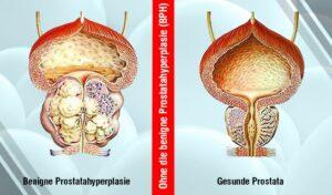 Eine wirksame Behandlung der BPH bei Männern ohne Operation